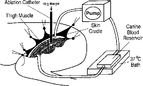 Figure 1 From Inverse Relationship Between Electrode Size And Lesion
