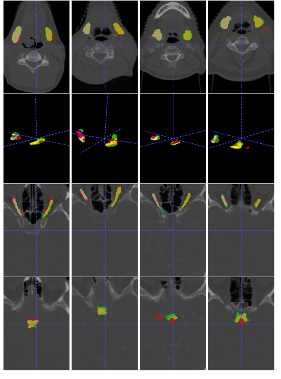 Figure 4 for AnatomyNet: Deep 3D Squeeze-and-excitation U-Nets for fast and fully automated whole-volume anatomical segmentation