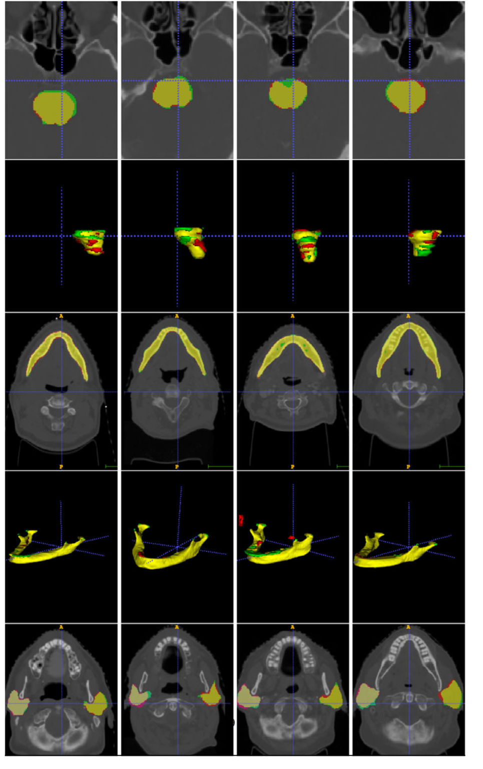 Figure 3 for AnatomyNet: Deep 3D Squeeze-and-excitation U-Nets for fast and fully automated whole-volume anatomical segmentation