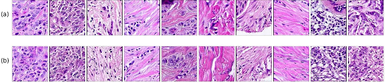 Figure 2 for Learning a low dimensional manifold of real cancer tissue with PathologyGAN