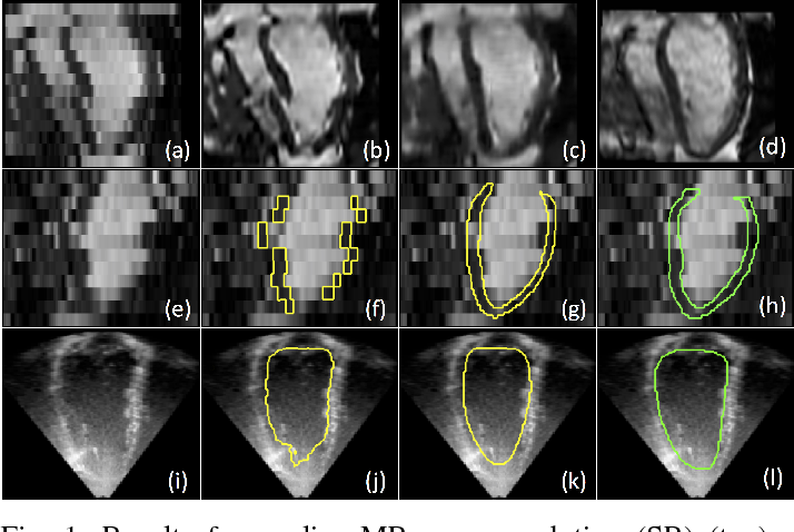 Figure 1 for Anatomically Constrained Neural Networks (ACNN): Application to Cardiac Image Enhancement and Segmentation