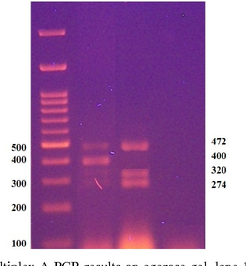 Figure 1: A representative of multiplex A PCR results on agarose gel, lane 1: Marker. Lane 2: DNA of normal male. Lane 3: DNA of a patient with AZFc complete microdeletion (absence of sY 254, 400bp), Lane 4: Water