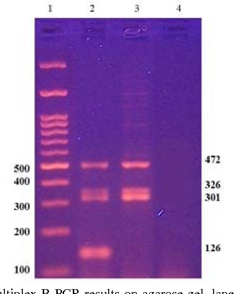 Figure 2: A representative of multiplex B PCR results on agarose gel, lane 1: Marker. Lane 2: DNA of normal male. Lane 3: DNA of a patient with AZFc complete microdeletion (absence of sY 255, 126bp), Lane 4: Water