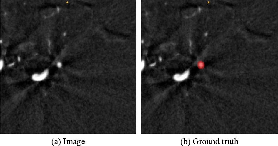 Figure 1 for Exploring Large Context for Cerebral Aneurysm Segmentation