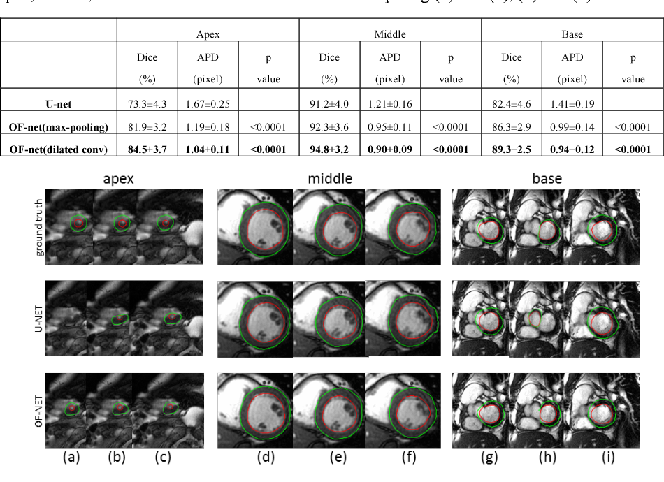 Figure 1 for Left Ventricle Segmentation via Optical-Flow-Net from Short-axis Cine MRI: Preserving the Temporal Coherence of Cardiac Motion