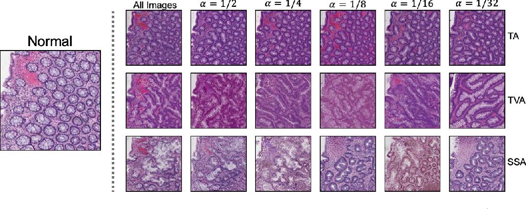 Figure 4 for Generative Image Translation for Data Augmentation in Colorectal Histopathology Images