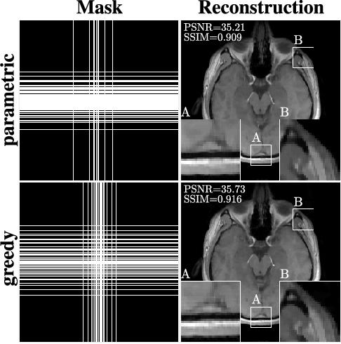 Figure 3 for Learning-Based Compressive MRI