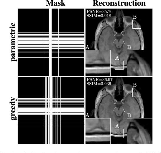 Figure 4 for Learning-Based Compressive MRI