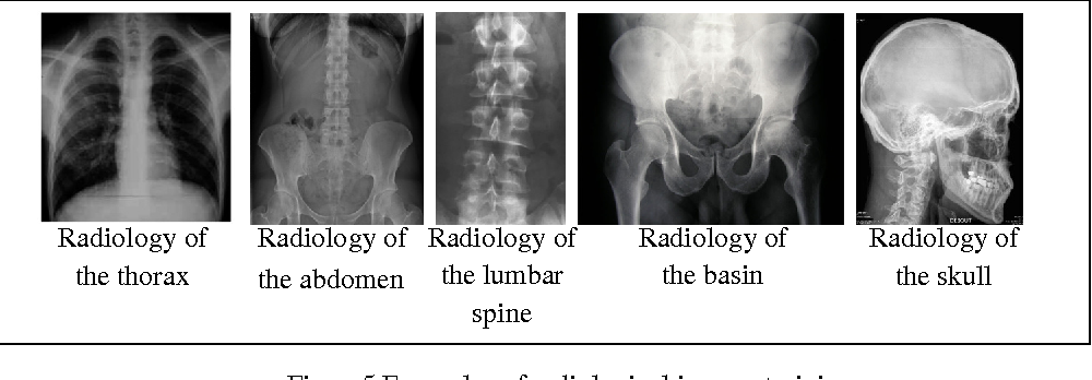 Figure 2 for Using a bag of Words for Automatic Medical Image Annotation with a Latent Semantic