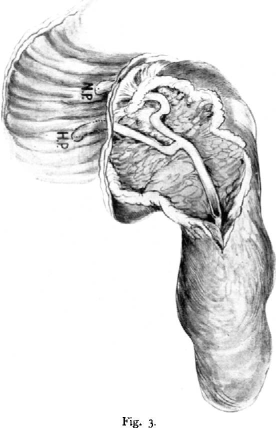 Zur Anatomie des Ductus Wirsungianus und Ductus Santorini; ihre ...