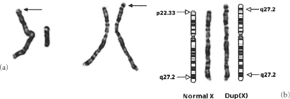 Figure 19 3 from Human Chromosomes - Semantic Scholar