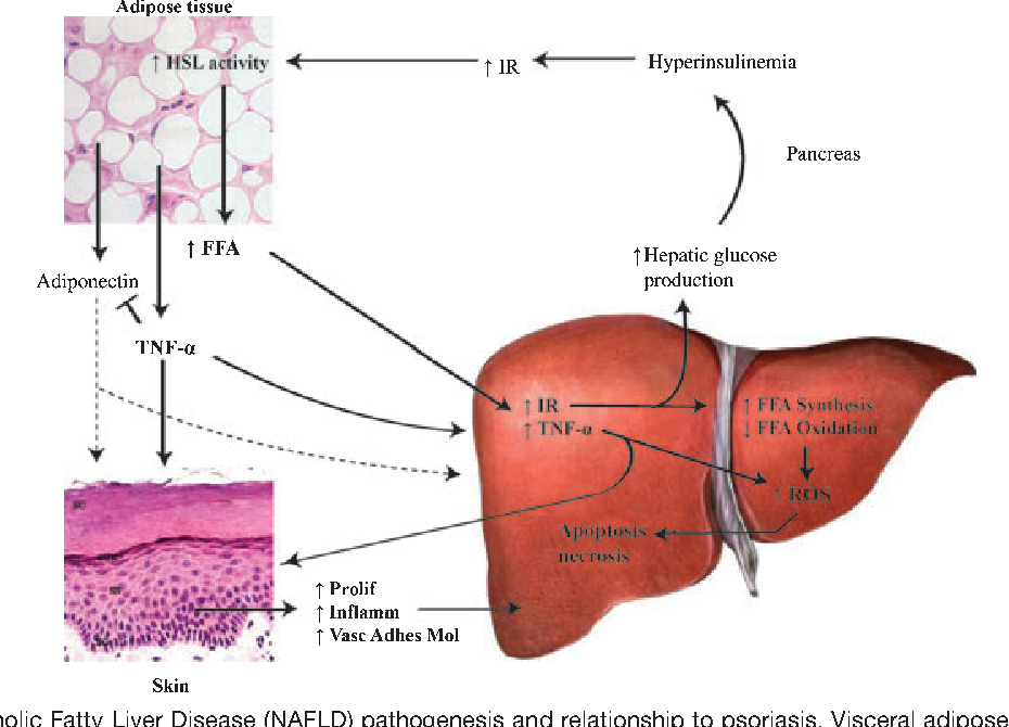 Psoriasis and nonalcoholic fatty liver disease semantic scholar figure 2 ccuart Gallery