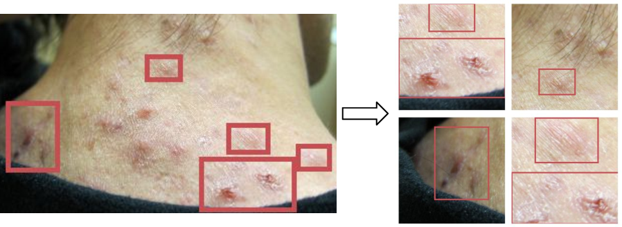 Figure 3 for DermGAN: Synthetic Generation of Clinical Skin Images with Pathology