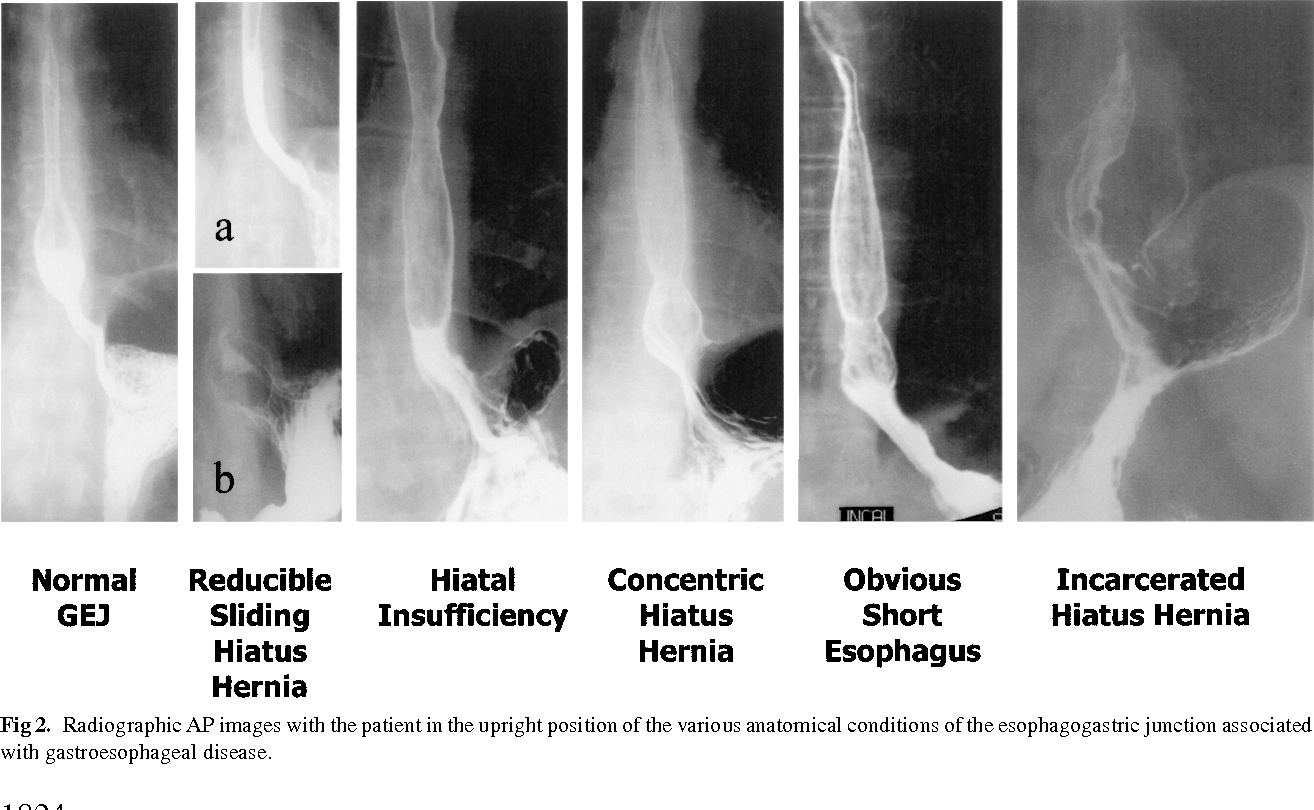 Figure 2 From Hiatus Hernia And Intrathoracic Migration Of