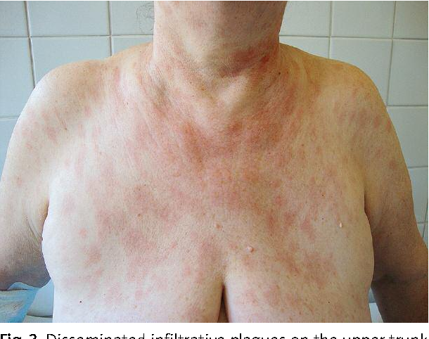 Figure 3 from A case of diffuse large B-cell lymphoma misdiagnosed
