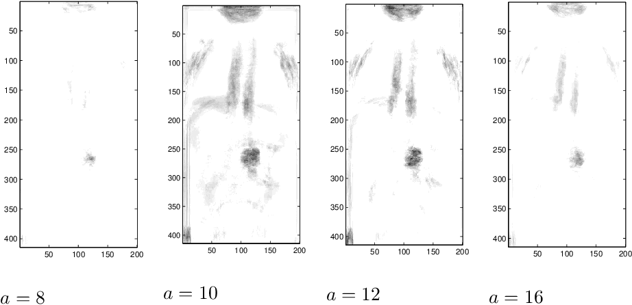 Figure 4 for Detecting the Most Unusual Part of Two and Three-dimensional Digital Images