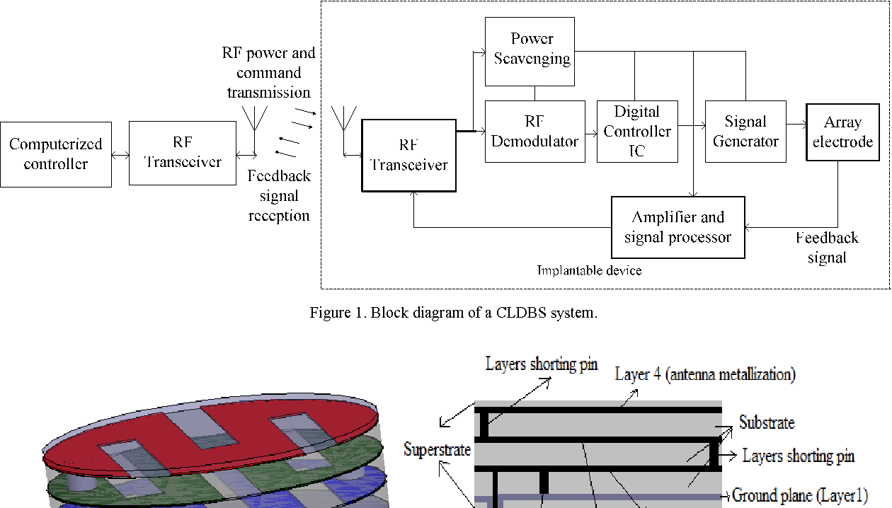 Figure 1 from Multi-layer implantable antenna for closed loop deep ...