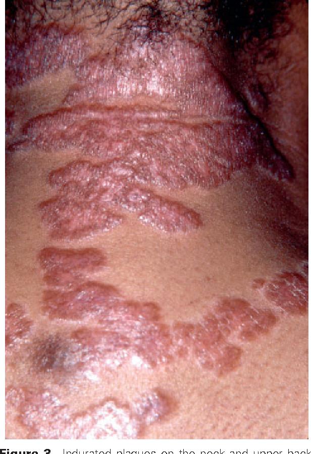 Sarcoidosis (cutaneous sarcoidosis) - The Clinical Advisor