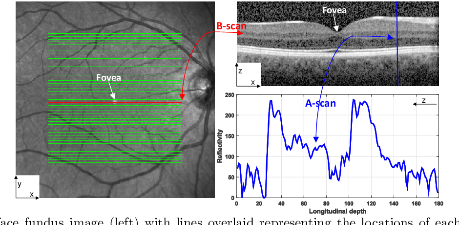 Figure 1 for Automated Segmentation of Retinal Layers from Optical Coherent Tomography Images Using Geodesic Distance