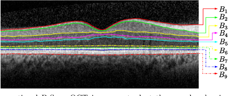 Figure 3 for Automated Segmentation of Retinal Layers from Optical Coherent Tomography Images Using Geodesic Distance