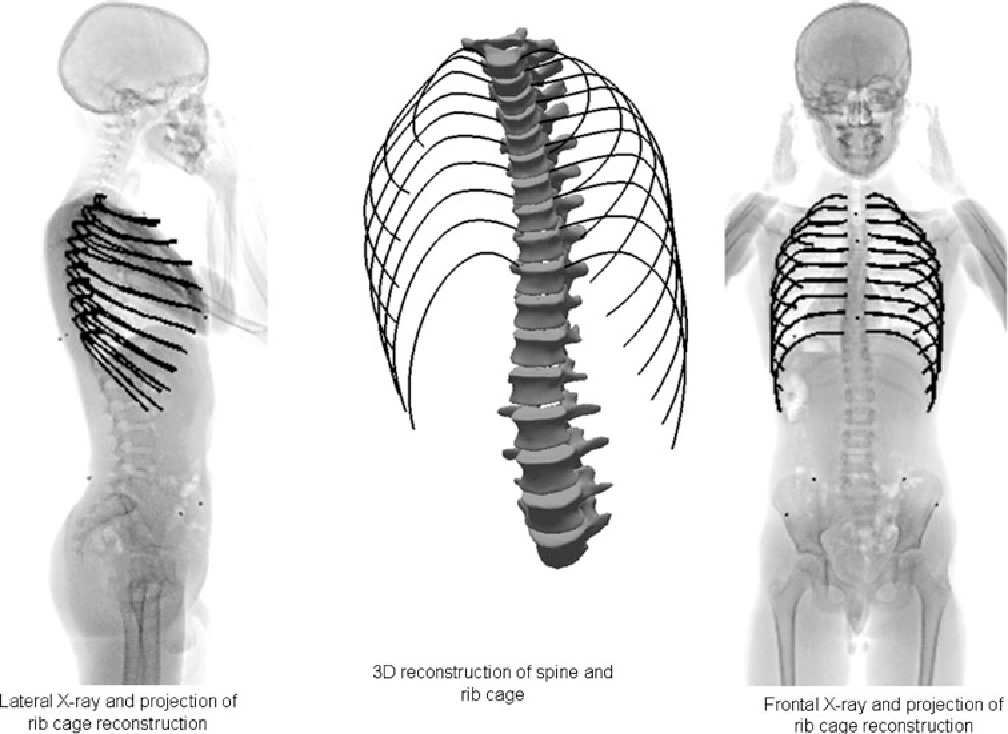 Fast 3d Reconstruction Of The Rib Cage From Biplanar Radiographs