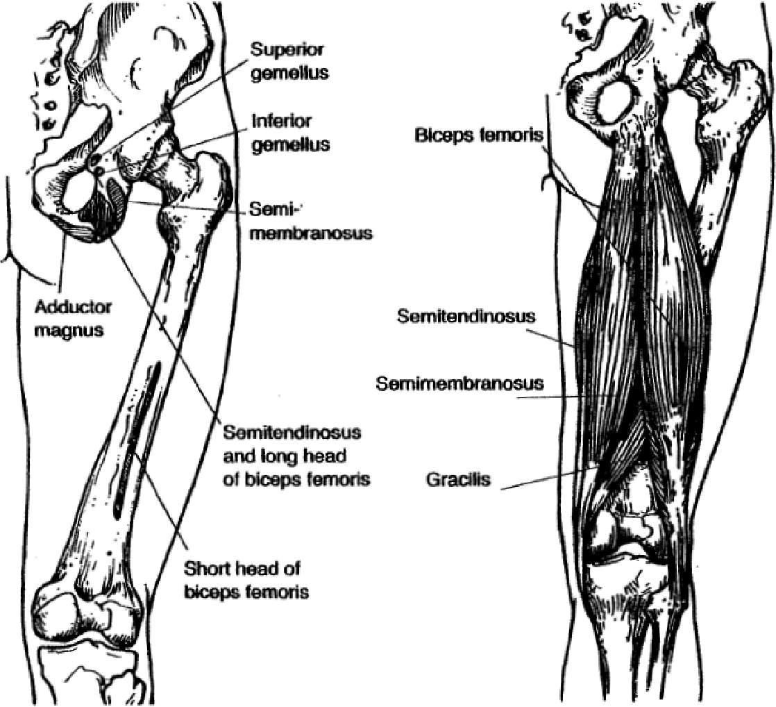 Figure 3 From Acute Proximal Hamstring Rupture Semantic Scholar