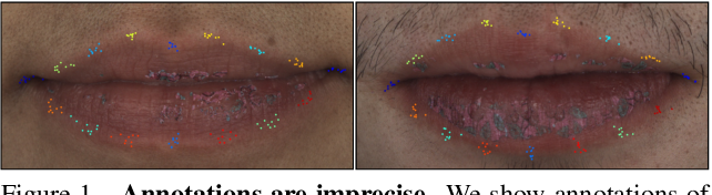 Figure 1 for Supervision-by-Registration: An Unsupervised Approach to Improve the Precision of Facial Landmark Detectors