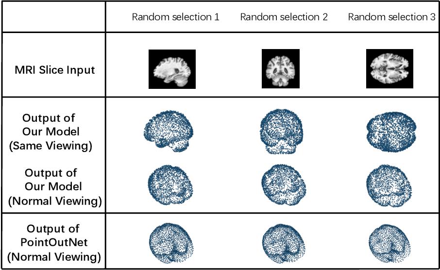 Figure 3 for A Point Cloud Generative Model via Tree-Structured Graph Convolutions for 3D Brain Shape Reconstruction