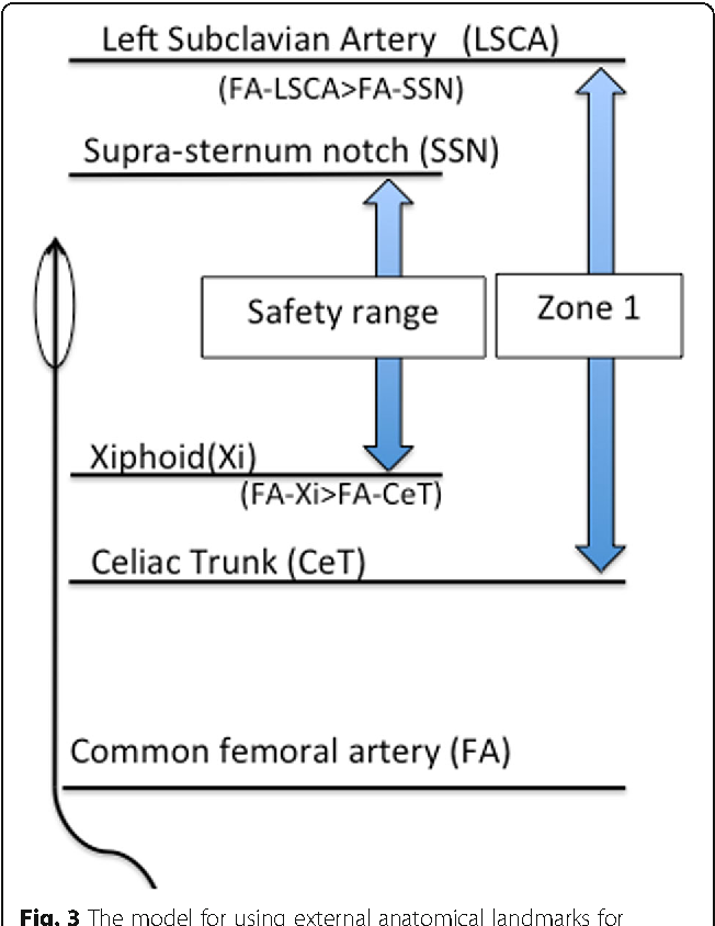 Fig. 3 The model for using external anatomical landmarks for predicting a safe balloon catheter length