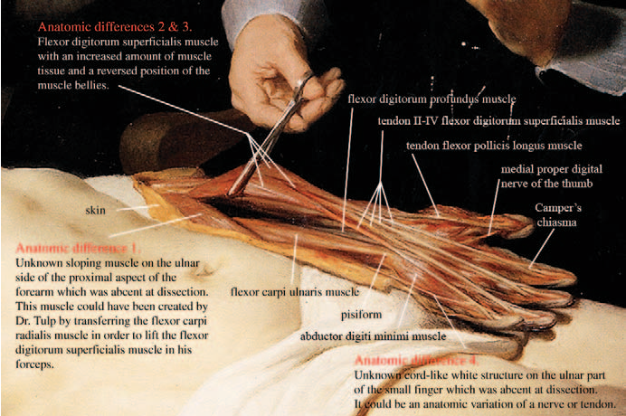 Figure 2 From The Anatomy Lesson Of Dr Nicolaes Tulp Painted By