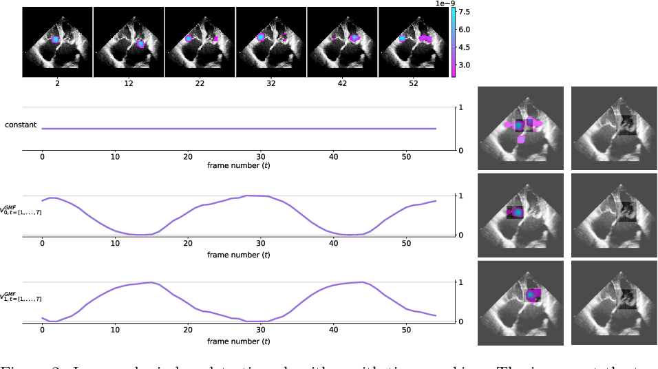 Figure 3 for Neural collaborative filtering for unsupervised mitral valve segmentation in echocardiography