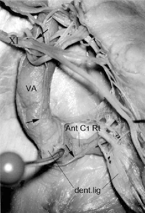 Fig. 1 A slender McKenzie branch (arrows) from the accessory nerve (XI) runs close to the vertebral artery (VA), winds around the denticulate ligament (dent.lig) and joins the anterior C1 root (Ant C1 Rt)
