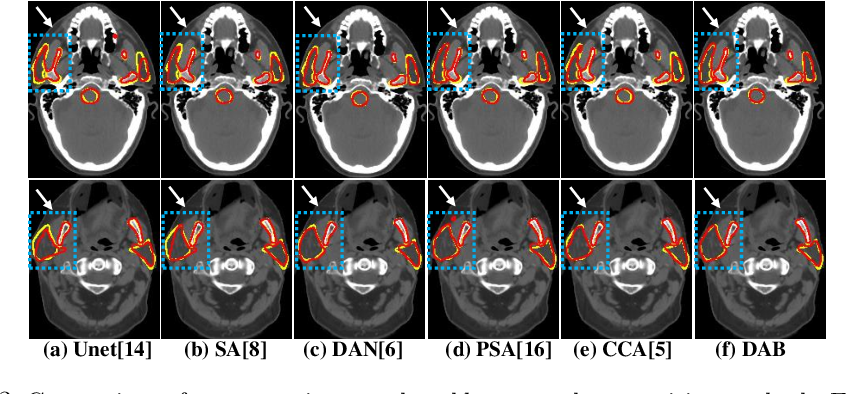 Figure 4 for Local block-wise self attention for normal organ segmentation