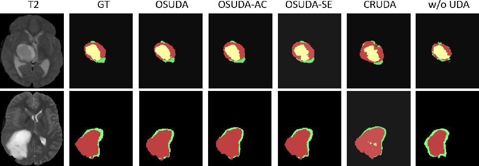 Figure 3 for Adapting Off-the-Shelf Source Segmenter for Target Medical Image Segmentation