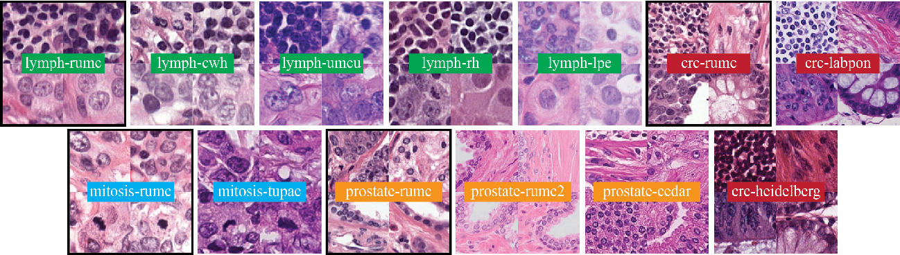 Figure 1 for Quantifying the effects of data augmentation and stain color normalization in convolutional neural networks for computational pathology
