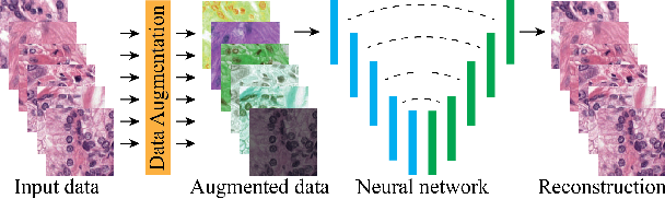 Figure 4 for Quantifying the effects of data augmentation and stain color normalization in convolutional neural networks for computational pathology