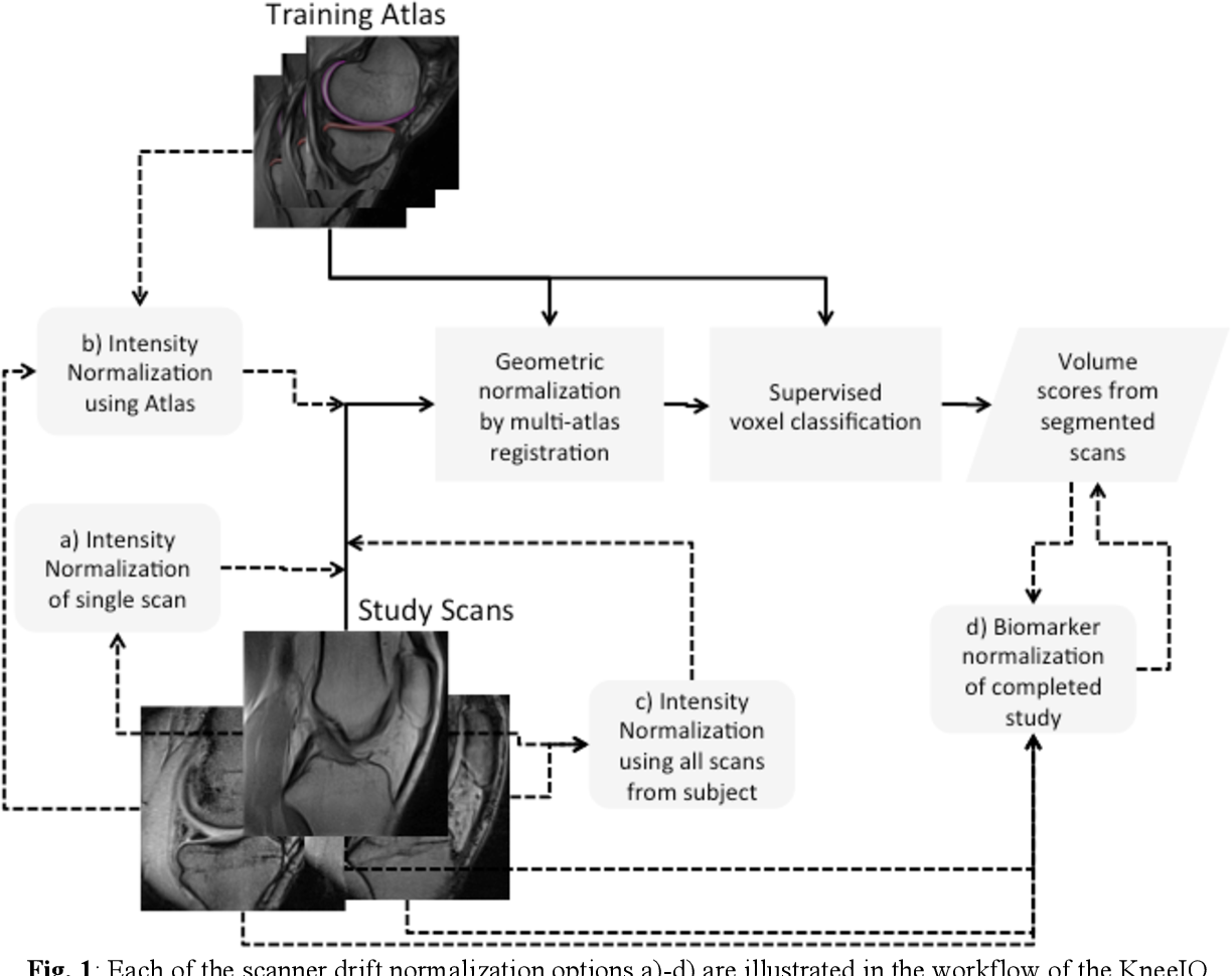 Figure 1 for Simple Methods for Scanner Drift Normalization Validated for Automatic Segmentation of Knee Magnetic Resonance Imaging - with data from the Osteoarthritis Initiative