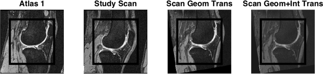 Figure 3 for Simple Methods for Scanner Drift Normalization Validated for Automatic Segmentation of Knee Magnetic Resonance Imaging - with data from the Osteoarthritis Initiative
