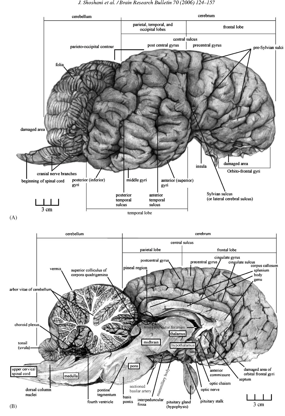 Elephant Brain Lobe Diagram - Trusted Wiring Diagram •