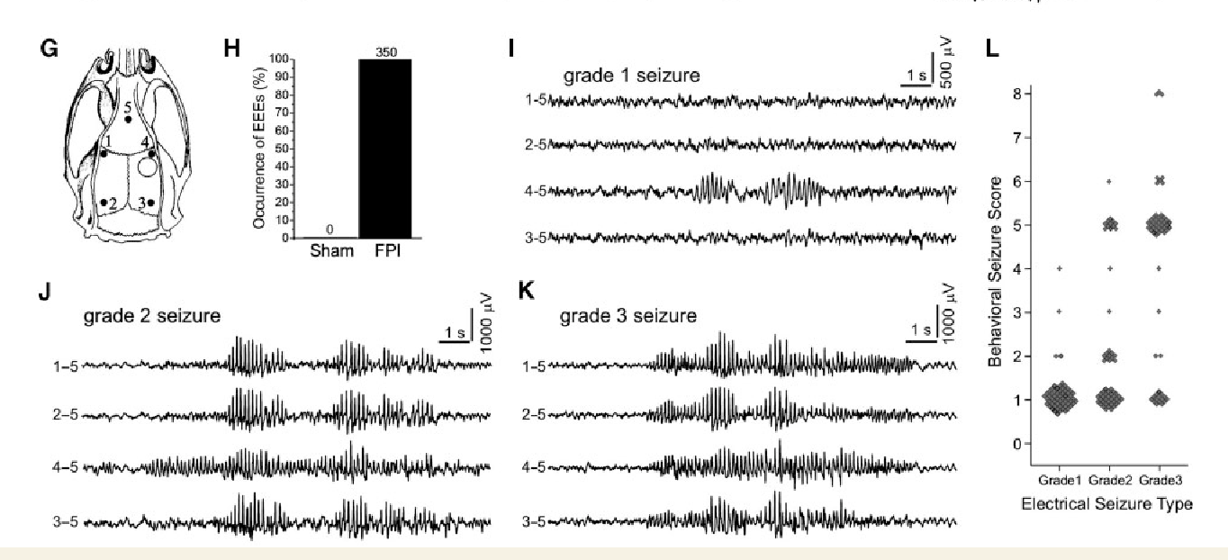 figure 2 from functional definition of seizure provides new insight