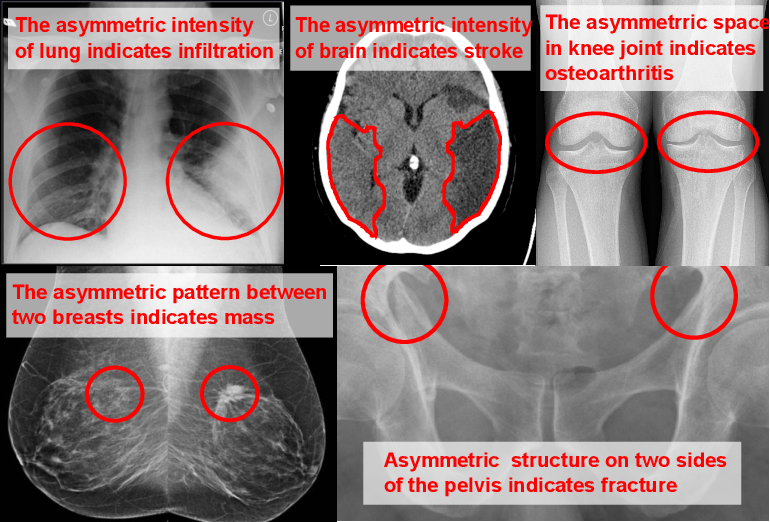 Figure 1 for Anatomy-Aware Siamese Network: Exploiting Semantic Asymmetry for Accurate Pelvic Fracture Detection in X-ray Images