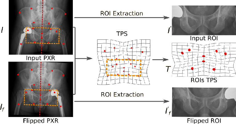 Figure 3 for Anatomy-Aware Siamese Network: Exploiting Semantic Asymmetry for Accurate Pelvic Fracture Detection in X-ray Images