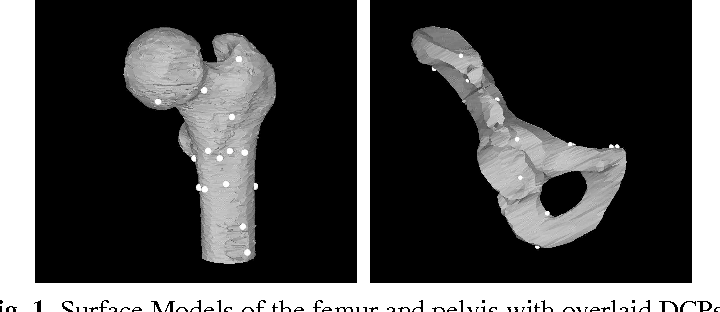Fig. 1. Surface Models of the femur and pelvis with overlaid DCPs.