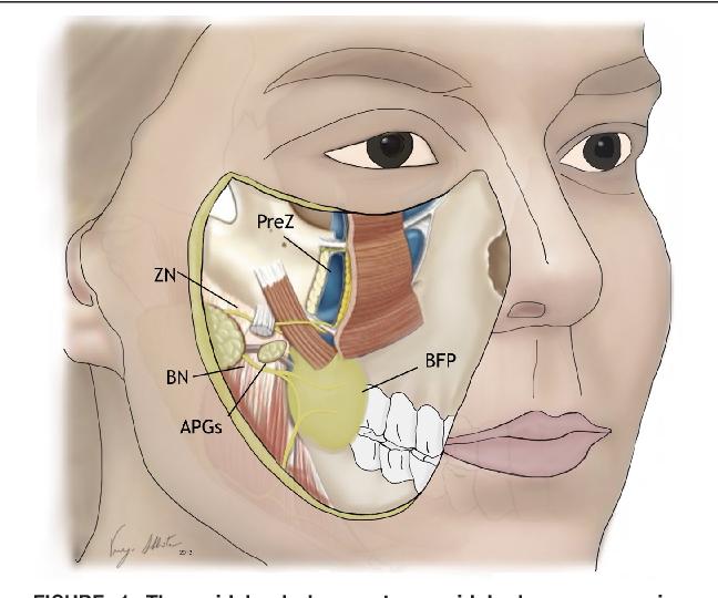 Figure 1 From Midcheek Endoscopic Anatomy Semantic Scholar