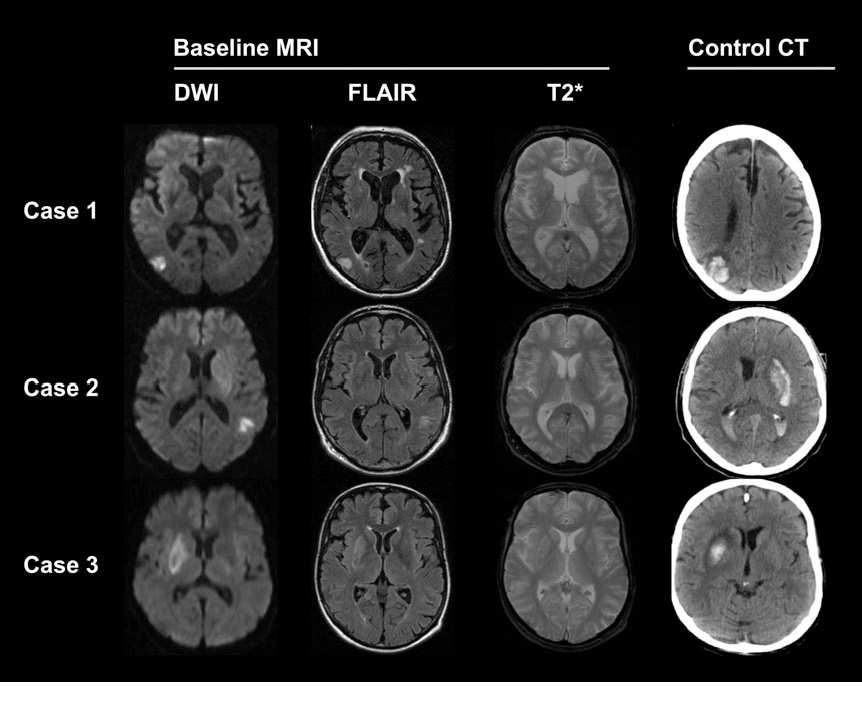 Figure 1 from Predicting intracerebral hemorrhage by ...