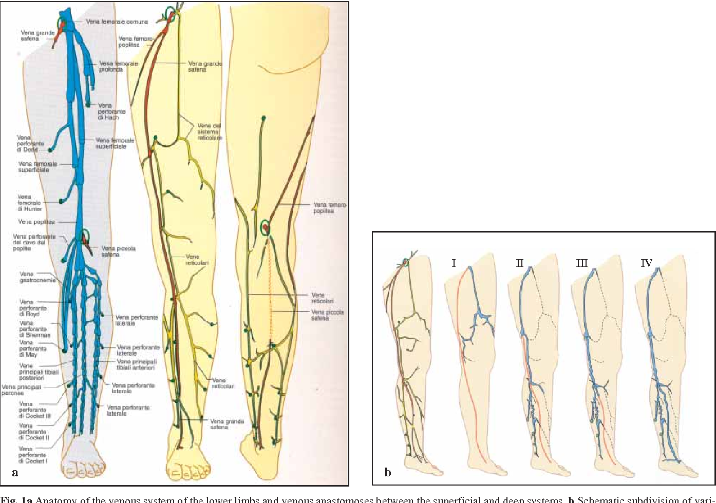 Endovenous laser therapy of the incompetent great saphenous vein ...