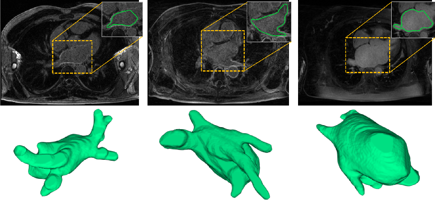 Figure 1 for Pyramid Network with Online Hard Example Mining for Accurate Left Atrium Segmentation