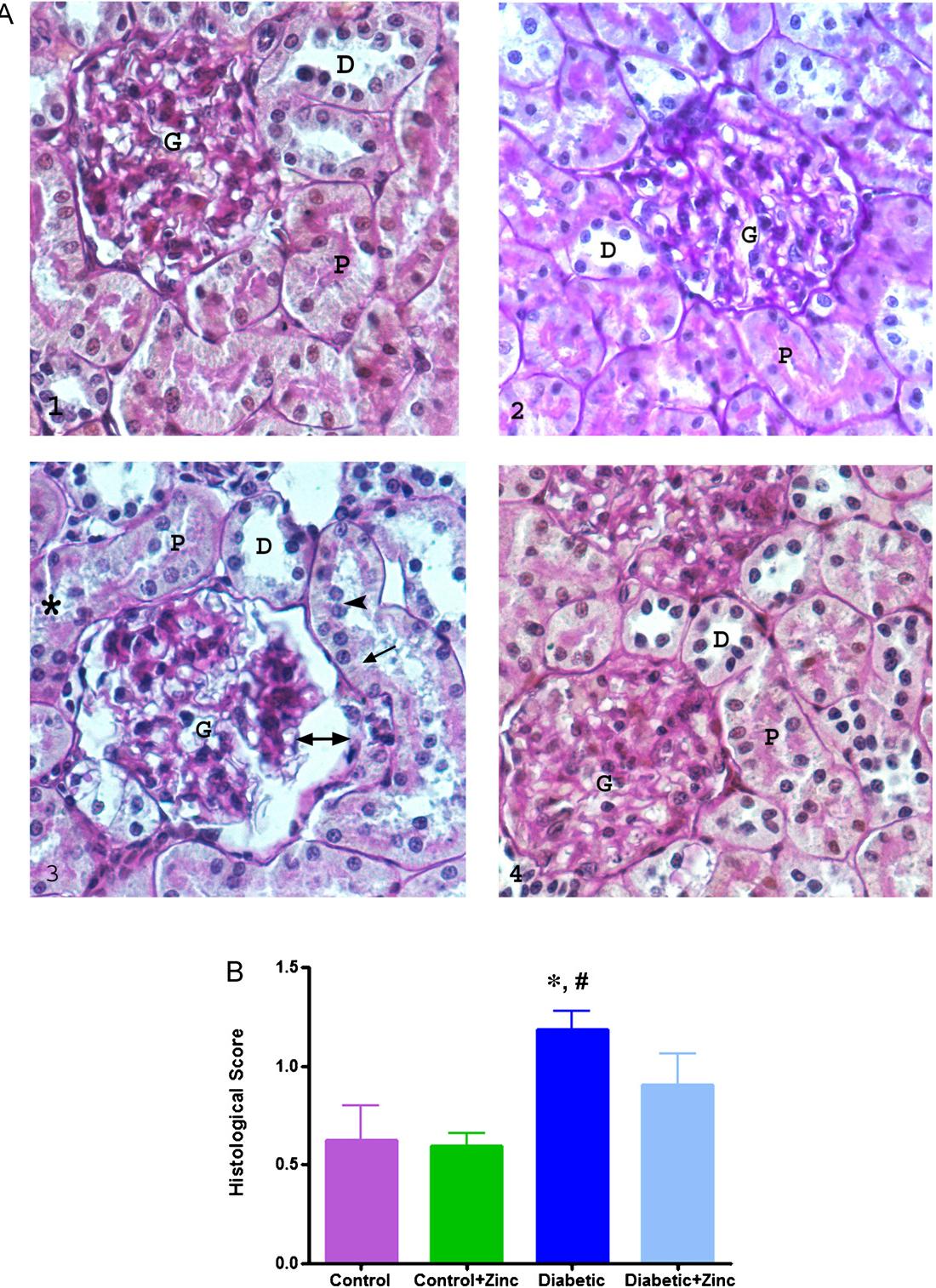 Alterations In Kidney Tissue Following Zinc Supplementation To Stz