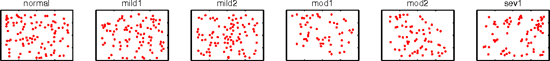 Figure 2 for Inference for determinantal point processes without spectral knowledge