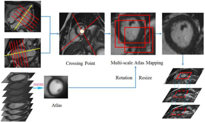 Figure 2 for Multi-views Fusion CNN for Left Ventricular Volumes Estimation on Cardiac MR Images